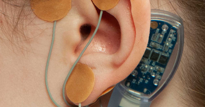 Discovery Radio - Episode #86 - Auricular Neurostimulation: Breakthrough Therapy for Kids with Functional Abdominal Pain Disorders